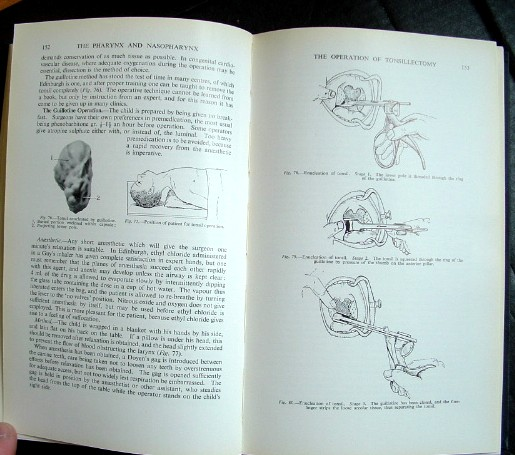 Image for Logan Turner's Diseases of the Nose Throat and Ear